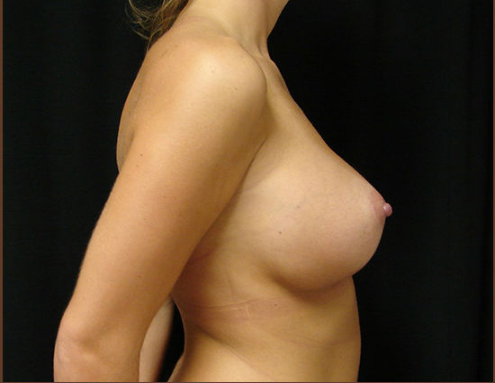 After-Breast Enlargement