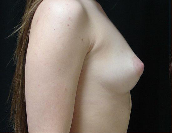 Before-Breast Enhancement