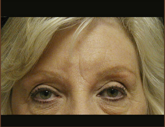 After-Coronal browlift with upper eyelid blepharoplasty
