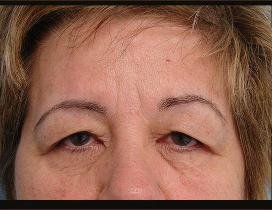 Before-Upper eyelid surgery & browlift.