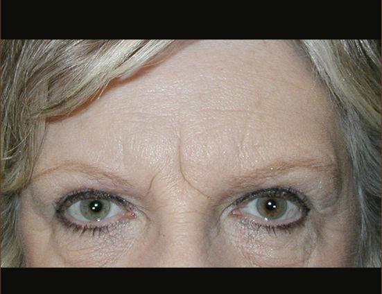 Before-Coronal browlift with upper eyelid blepharoplasty