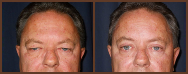 0151-before-and-after-1-jacobs