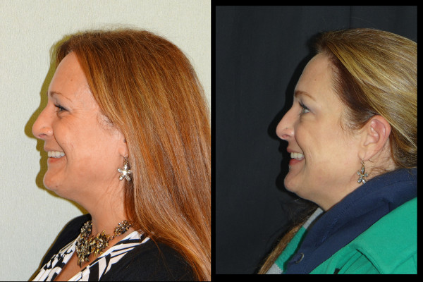 0192-botox-before-and-after-1-denk