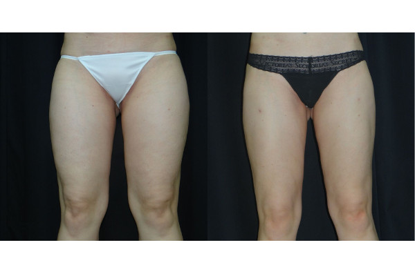 11764 post op lipo thighs before and after (1)