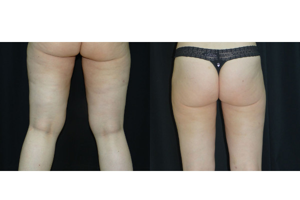 11764 post op lipo thighs before-and-after-(2)