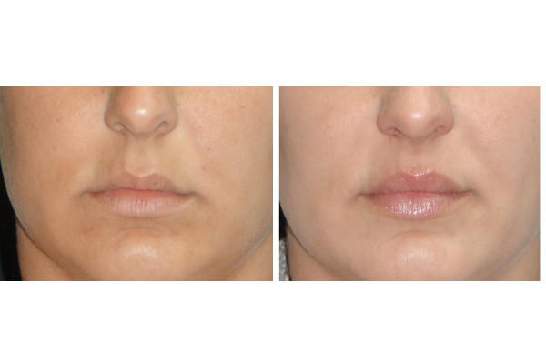 13425 cropped post juvederm lips before and after 1