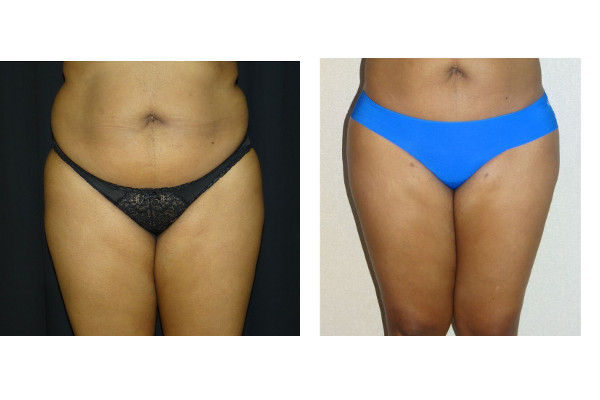 14348 post op lipo abd & waist before and after 1