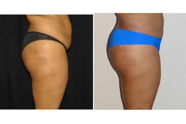 14348 post op lipo abd & waist before and after 2