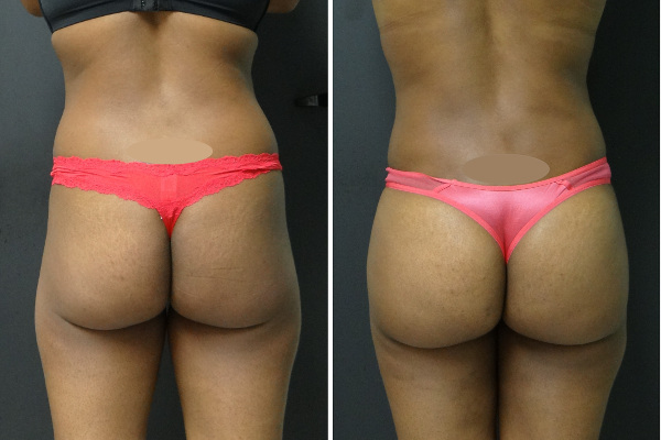 Liposuction Before And Afters Archives Associates In Plastic Surgery