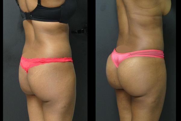 buttock-enhancement-charlotte-plastic-surgeon-19265