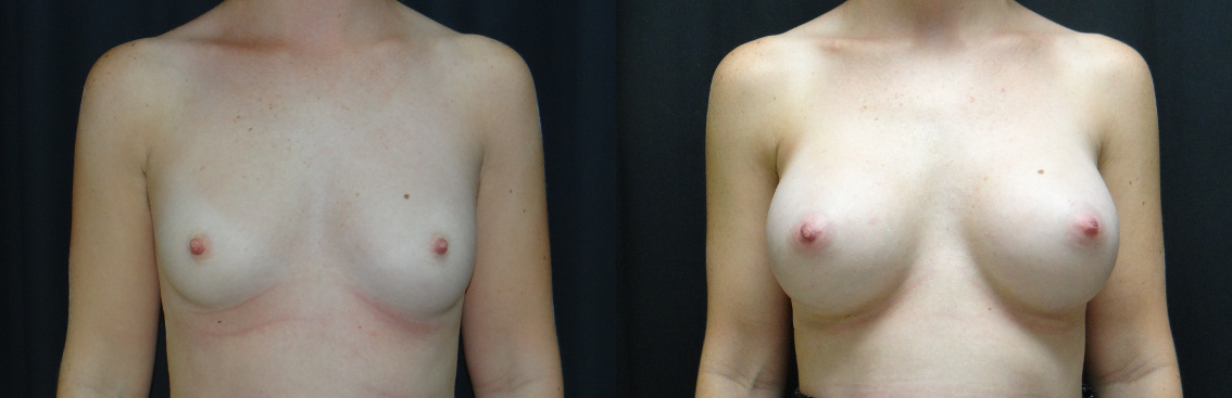 27388 post op breast aug before and after (1)