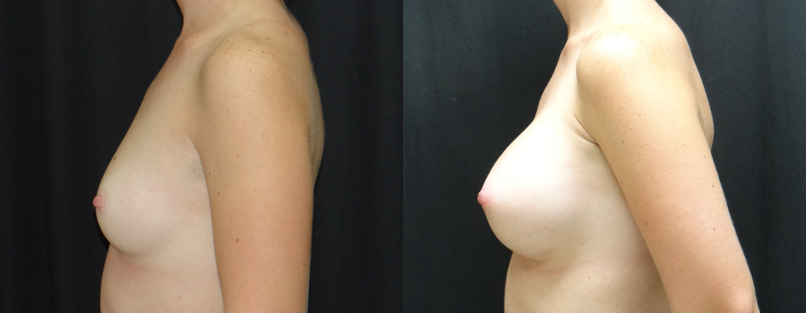 27388 post op breast aug before and after (2)