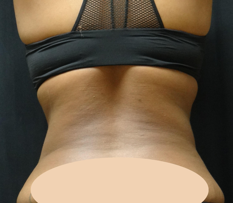 post-op-liposuction-abdomen-waist-&-back-Virginia-beach-plastic-surgeon