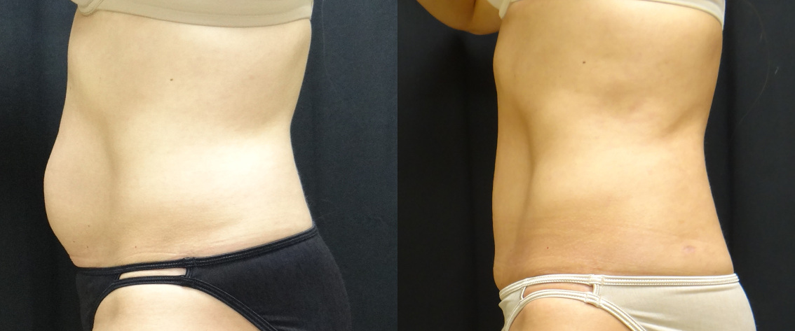 35727 post op abdominoplasty before and after (1)