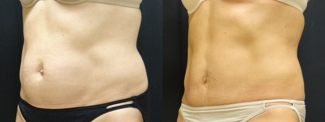 35727 post op abdominoplasty before and after (2)