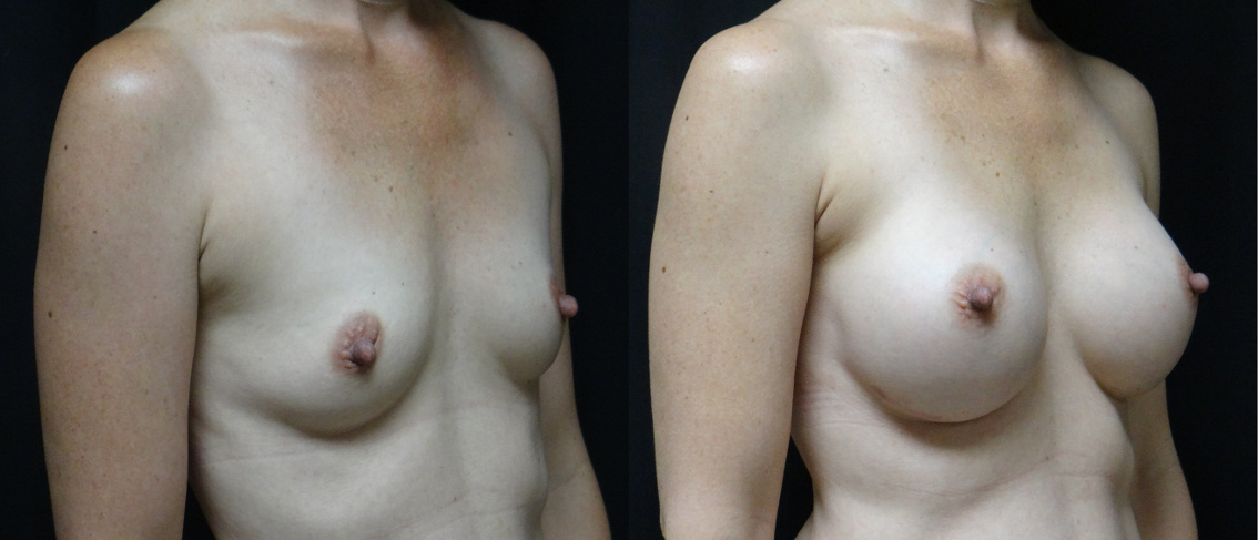 35907 post op breast aug before and after (1)