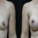 Breast Augmentation With High Profile Gel Implants