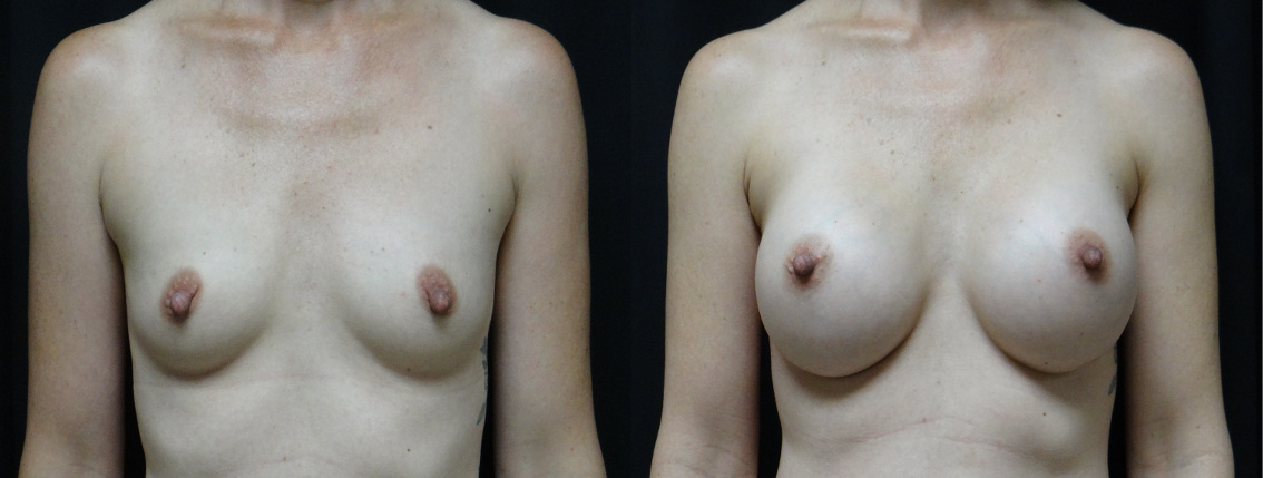 35907 post op breast aug before and after (2)