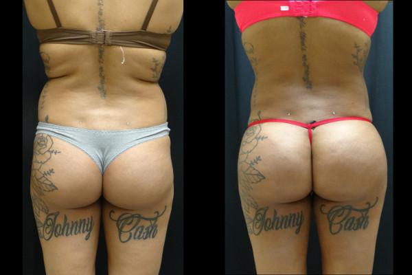 buttock-enhancement-charlotte-plastic-surgeon