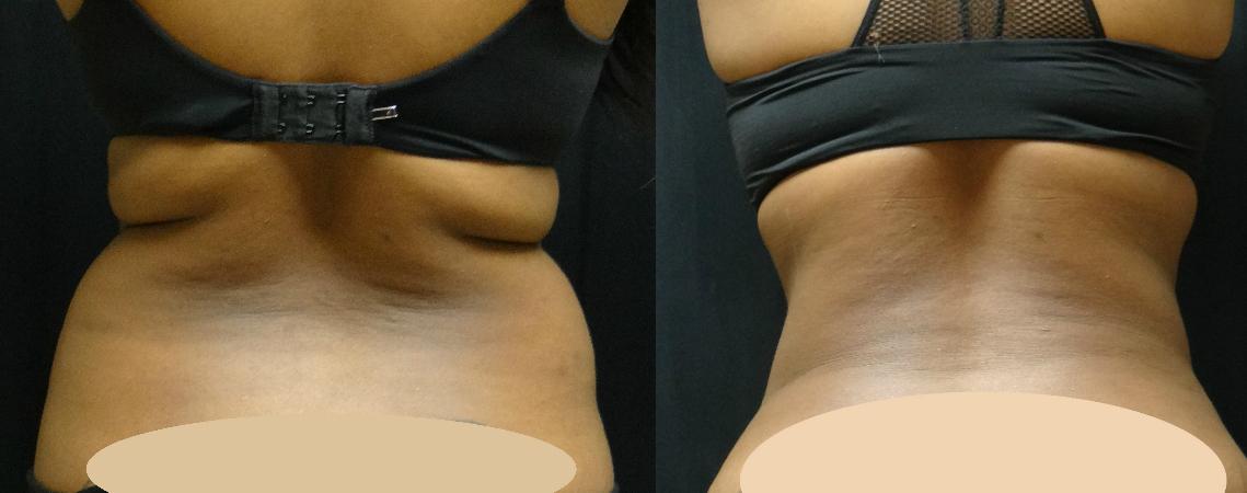Liposuction-Of-Back-and-waist-virginia-beach-plastic-surgeon