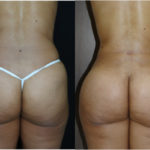 Buttock Enhancement for Shape with Liposuction
