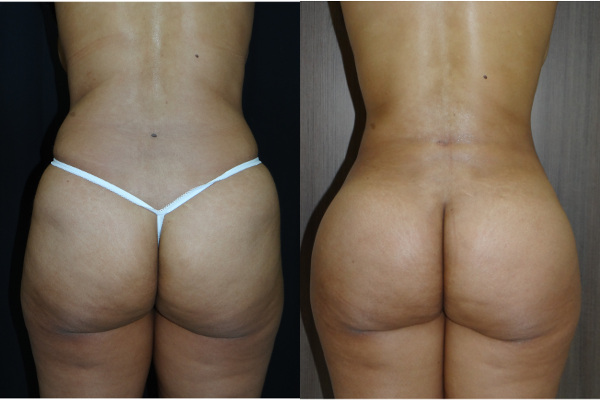 buttock-enhancement-charlotte-plastic-surgeon-9031