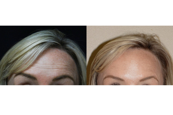 9783 post botox forehead_preview-before-and-after 1
