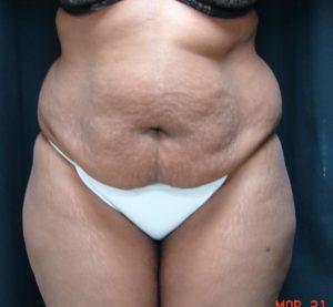 Abdominoplasty-Before-Dr-Alspaugh-Plastic-Surgeon-Virginia-Beach-1