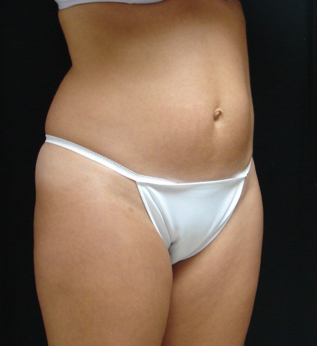 Abdominoplasty-Tummy-Tuck-Before-And-After-Virginia-Beach-VA-012-A