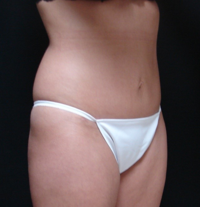 Abdominoplasty-Tummy-Tuck-Before-And-After-Virginia-Beach-VA-012-B