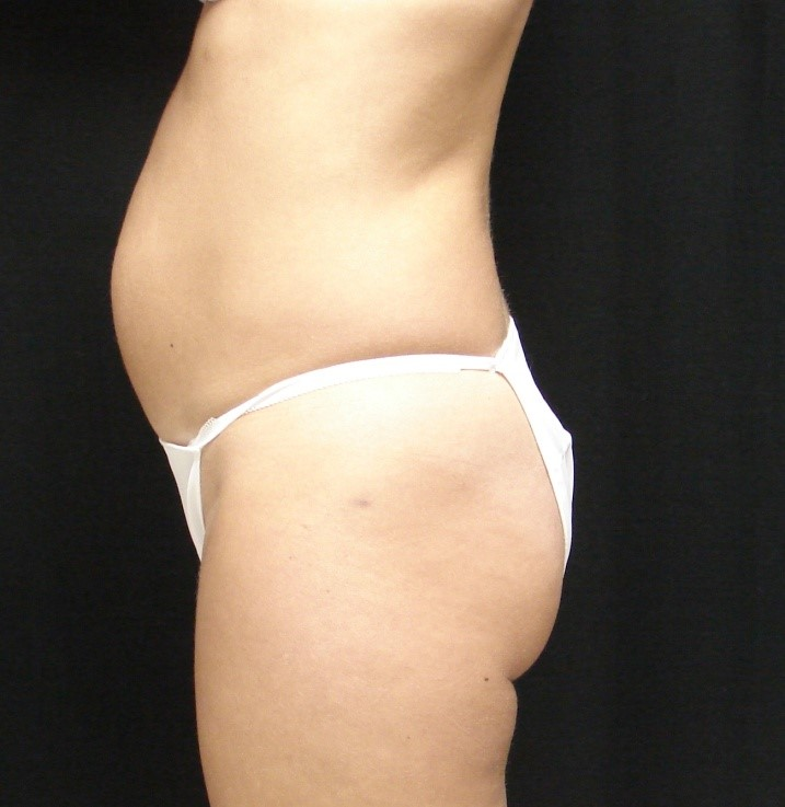 Abdominoplasty-Tummy-Tuck-Before-And-After-Virginia-Beach-VA-012-C