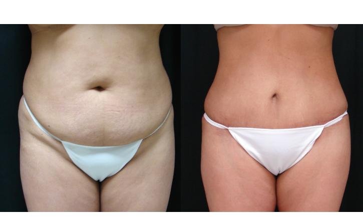 Abdominoplasty-Tummy-Tuck-Before-And-After-Virginia-Beach-VA-Plastic-Surgeon-014-Cover