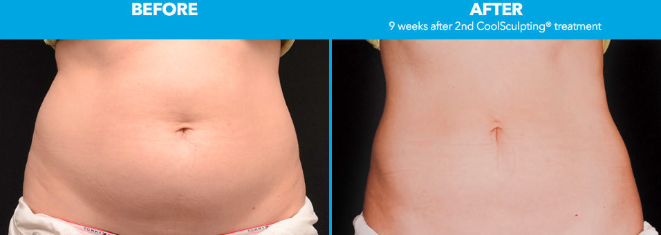 Before-After-Photo-Coolsculpting-Virginia-Beach-Norfolk-VA-Associates-In-Plastic-Surgery
