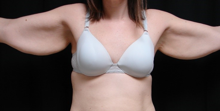 Brachioplasty-Before-and-After-Virginia-Beach-Plastic-Surgery-005-A