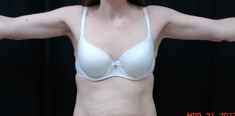 Brachioplasty-Before-and-After-Virginia-Beach-Plastic-Surgery-005-C