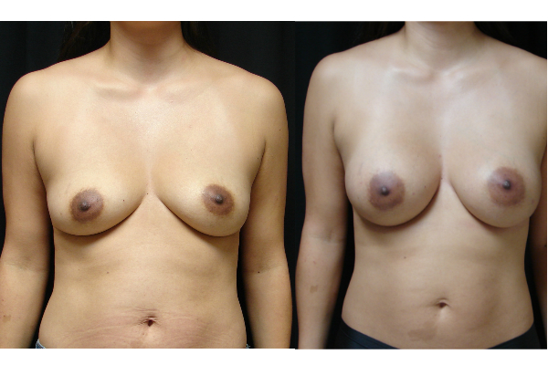 Breast-Augmentation-Before-After-Virginia-Beach-Plastic-Surgeon-VA-101-JSA