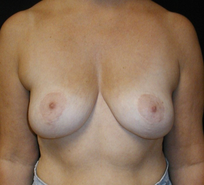 Breast-Augmentation-Before-&-After-Virginia-Beach-VA-Plastic-Surgeon-014-A