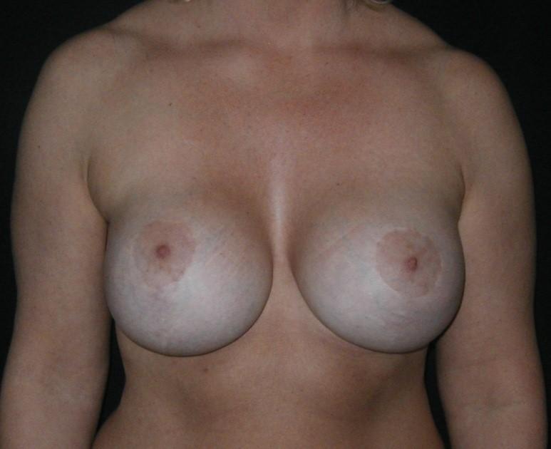 Breast-Augmentation-Before-&-After-Virginia-Beach-VA-Plastic-Surgeon-014-B