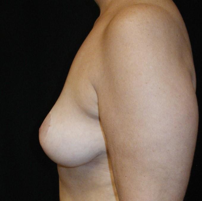 Breast-Augmentation-Before-&-After-Virginia-Beach-VA-Plastic-Surgeon-014-C