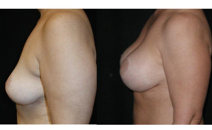 Breast-Augmentation-Before-&-After-Virginia-Beach-VA-Plastic-Surgeon-014-Cover