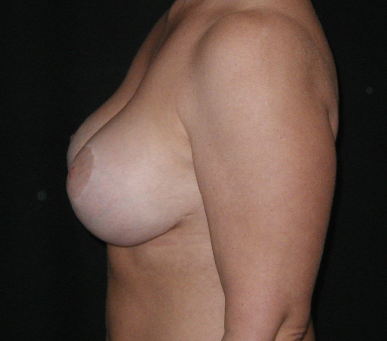 Breast-Augmentation-Before-&-After-Virginia-Beach-VA-Plastic-Surgeon-014-D