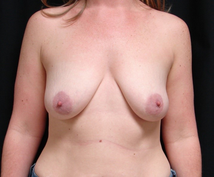 Breast-Augmentation-Before-&-After-Virginia-Beach-VA-Plastic-Surgeon-017-A