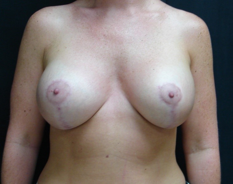 Breast-Augmentation-Before-&-After-Virginia-Beach-VA-Plastic-Surgeon-017-B