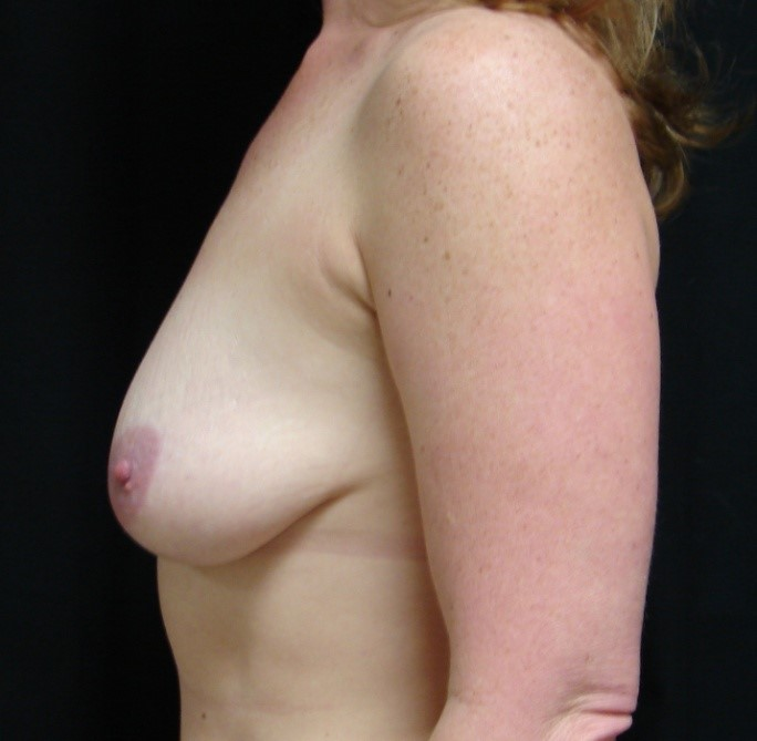 Breast-Augmentation-Before-&-After-Virginia-Beach-VA-Plastic-Surgeon-017-C