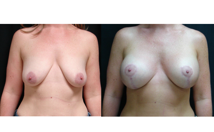 Breast-Augmentation-Before-&-After-Virginia-Beach-VA-Plastic-Surgeon-017-Cover