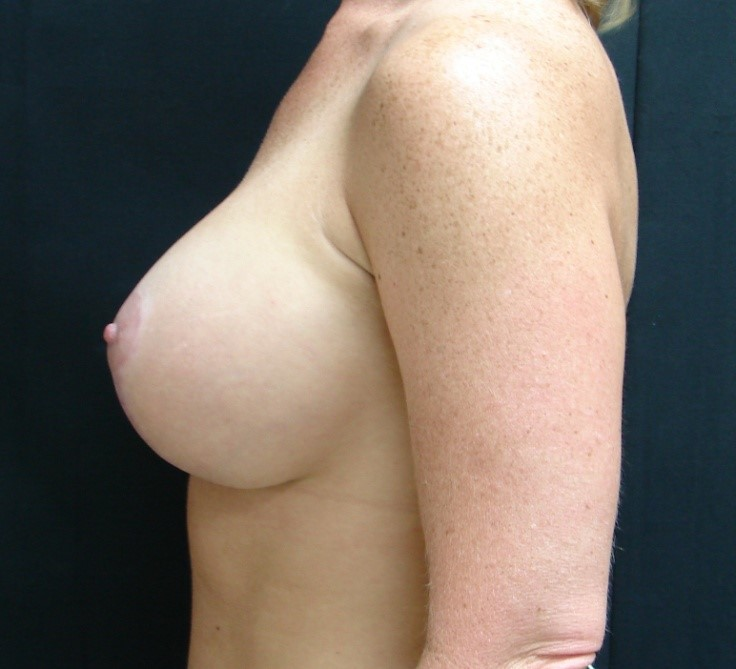 Breast-Augmentation-Before-&-After-Virginia-Beach-VA-Plastic-Surgeon-017-D