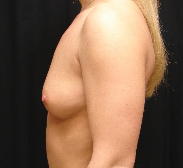 Breast-Augmentation-Before-And-After-Virginia-Beach-VA-007-A