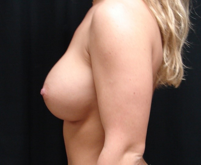 Breast-Augmentation-Before-And-After-Virginia-Beach-VA-007-B