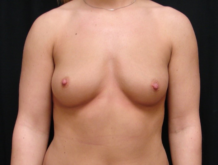 Breast-Augmentation-Before-And-After-Virginia-Beach-VA-007-C