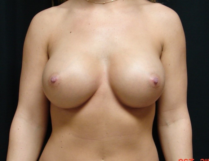 Breast-Augmentation-Before-And-After-Virginia-Beach-VA-007-D